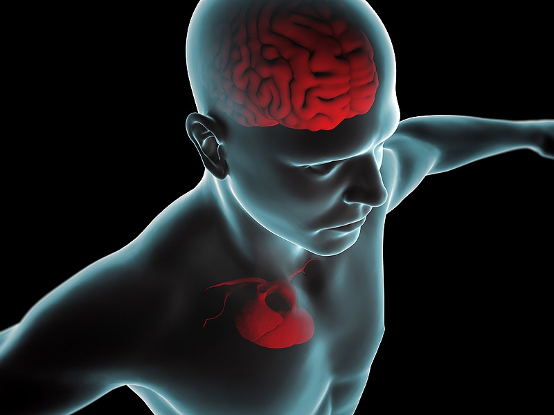 IRIS: Diabetes Drug Reduces Recurrent Stroke, MI