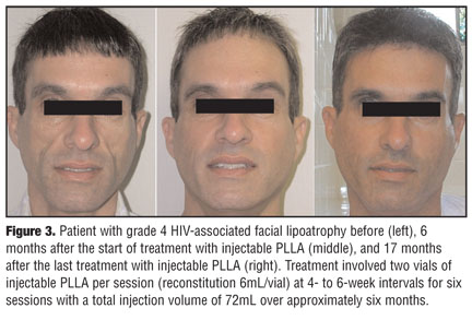 Subcision plus filler experience - Scar treatments - Acne.org Community