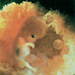 Human embryo cloning and research