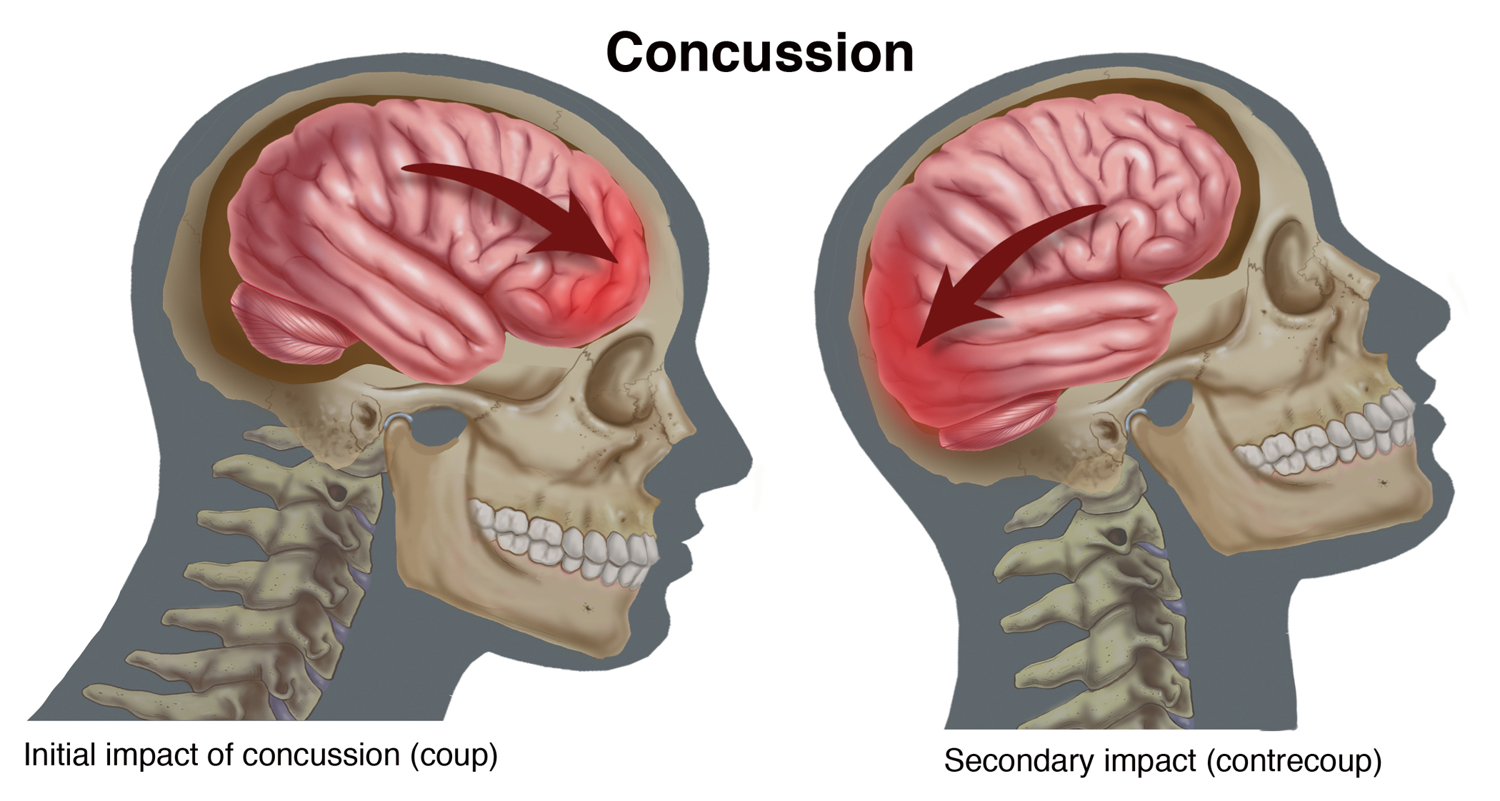 Concussion | Compel Visuals