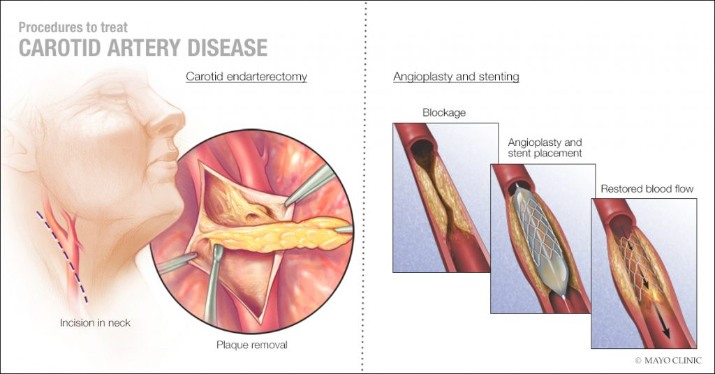Mayo Clinic Q and A: New treatment to open blocked carotid artery – Mayo Clinic News Network