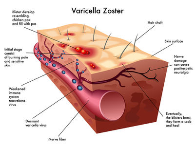 Varicella-zoster virus - microbewiki