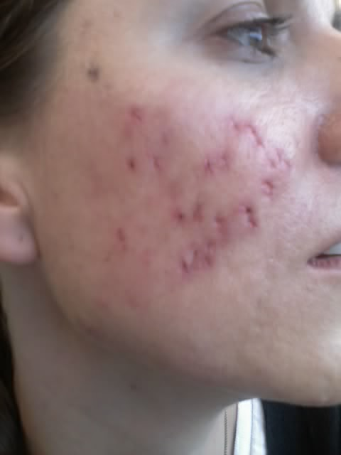 Scar logs - Cystic Acne Scar revision - Right cheek punch excisions stitches removed 4/29/09 ...