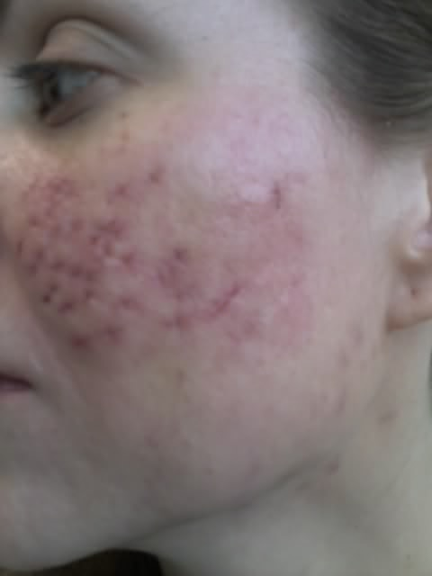 Scar logs - Cystic Acne Scar revision - Left cheek punch excision stitches removed 4/29/09 image ...