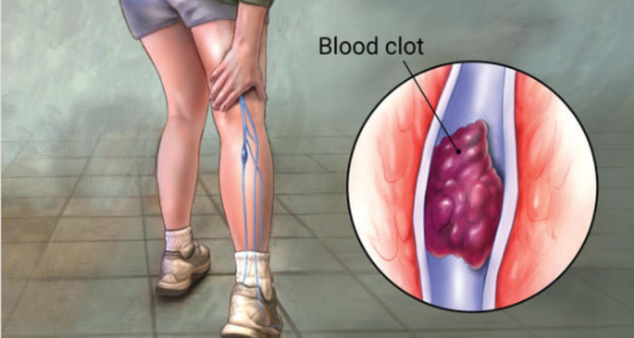 Deep vein thrombosis (Monster Within) – Nigerian health blog