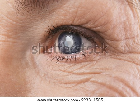 Cataract Stock Images, Royalty-Free Images & Vectors ...